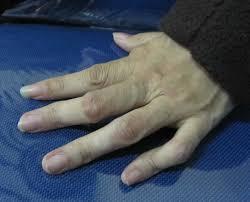Pengobatan Radang Sendi Jari Tangan